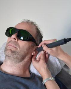 de behandeling met de laser